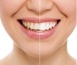 El blanqueamiento dental por fotoactivación