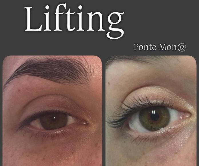Estética facial y corporal: Servicios de Ponte Mona