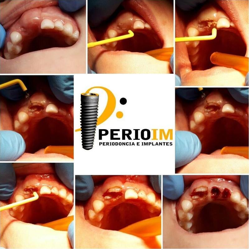 Dentista Torrejón de la Calzada