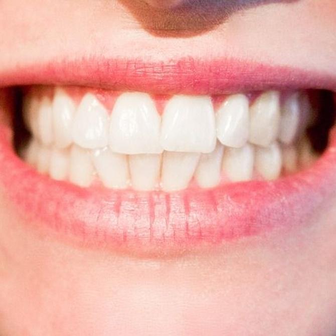 El peligro de la descalcificación dental