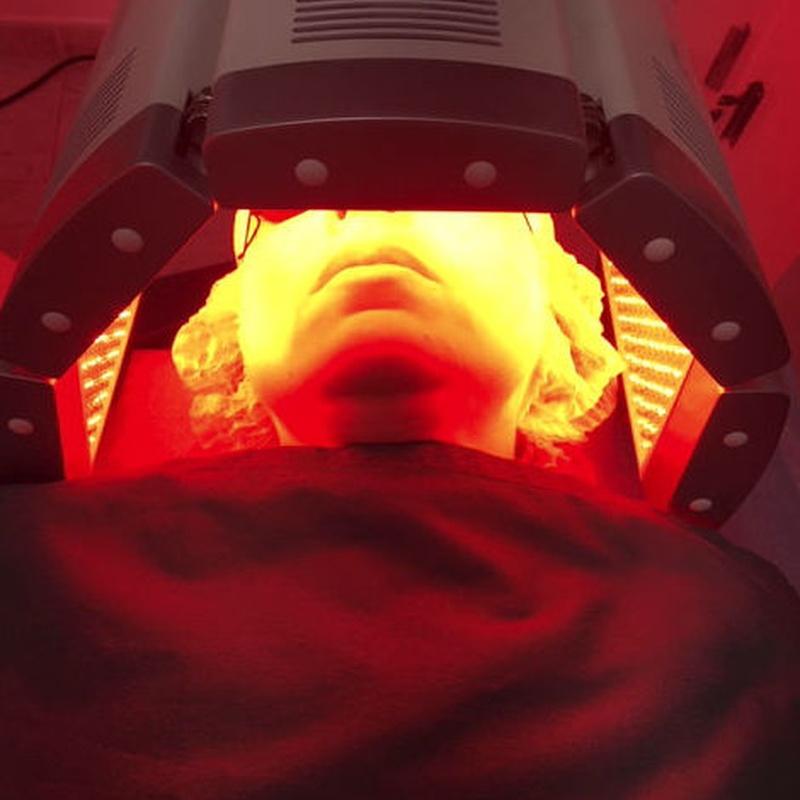 Tratamiento con LEDs