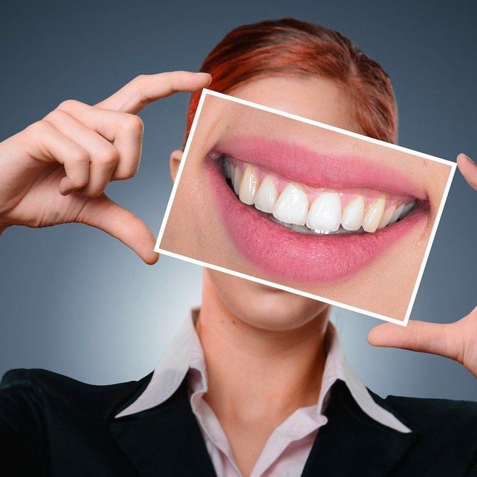 Periodontitis y gingivitis: el sufrimiento de las encías