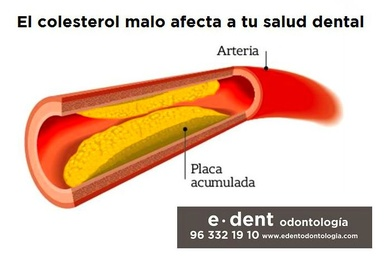El colesterol malo afecta a tu salud dental