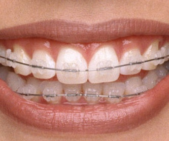 Ortodoncia Brackets Autoligables: Servicios de Clínica Ortodoncia María Dolores Olaizola