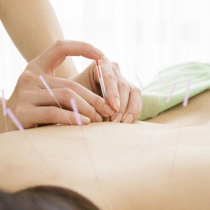 La acupuntura para adelgazar (II)