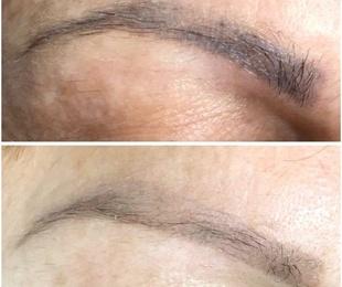 Eliminación de Micropigamentación de cejas, ojos y labios