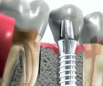 Estética dental: Tratamientos de Centro Dental Europa