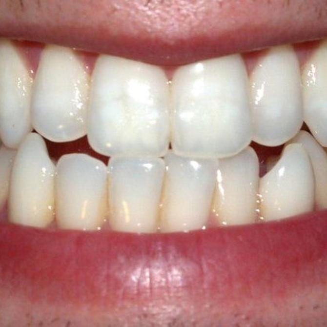 Las consecuencias del bruxismo dental