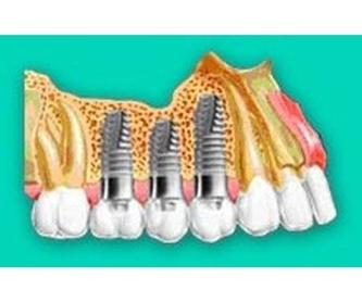 Estética dental: Tratamientos de Leandro Romero Esteban