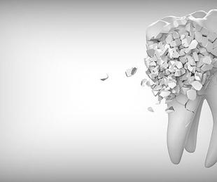 Cómo prevenir las caries con ortodoncia