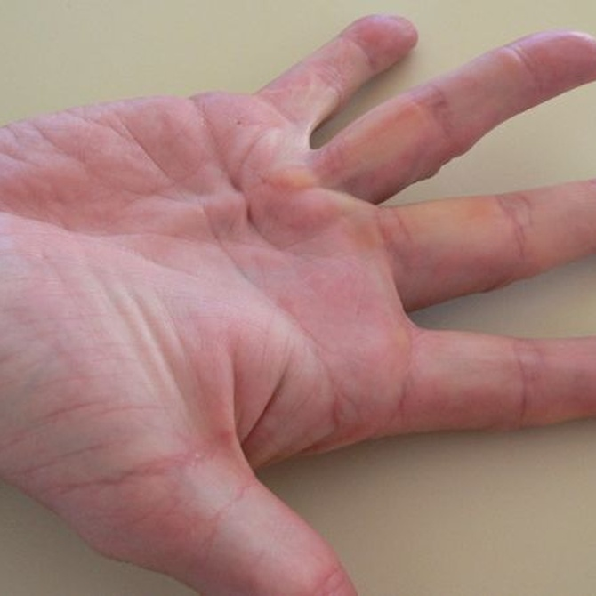 La esclerodermia