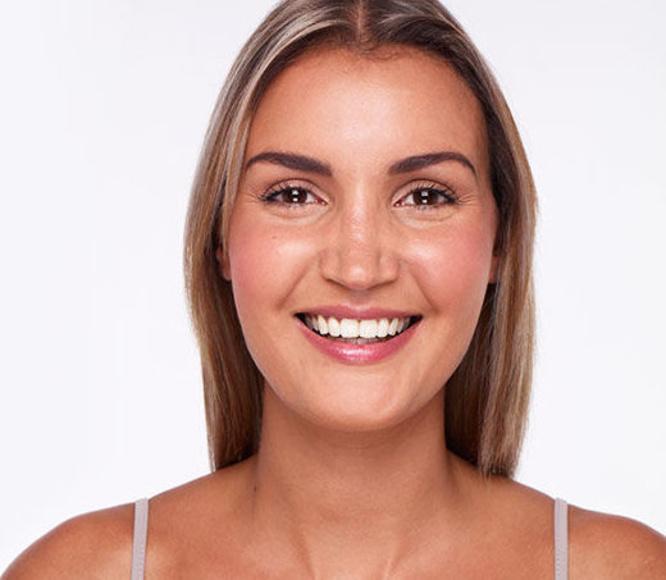 Estética Dental Baza