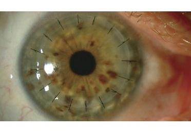 Tratamientos de enfermedades de la cornea. Qureatocono