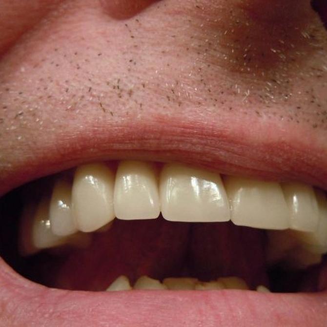 El Composite que emplean los odontólogos