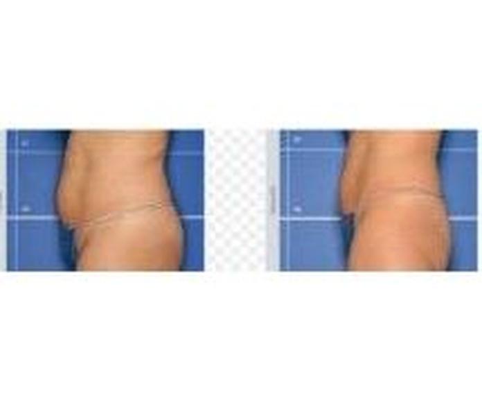 Tratamiento de abdomen: Tratamientos de Estética Tania Pineda