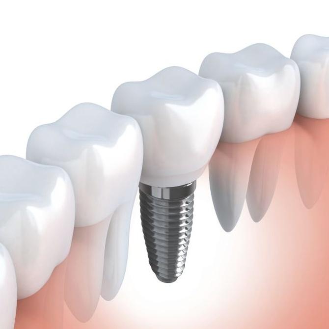 Implantes dentales con la última tecnología CAD-CAM