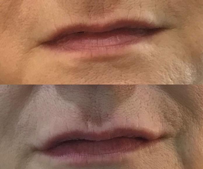 Nutrición labios