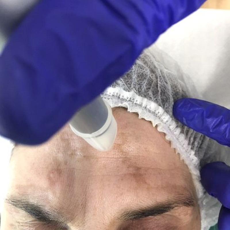 Melasma: Dermatología y Dermoestética de Dermatología Socorro Fierro