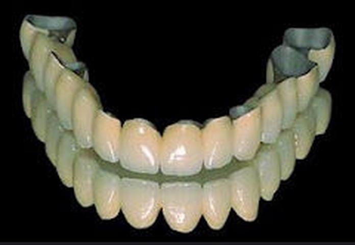 Prótesis fija: Especialidades de Clínica Dental Medicalia Fuenlabrada, tus dentistas de confianza
