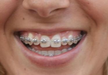 Ortodoncia niños y adultos: