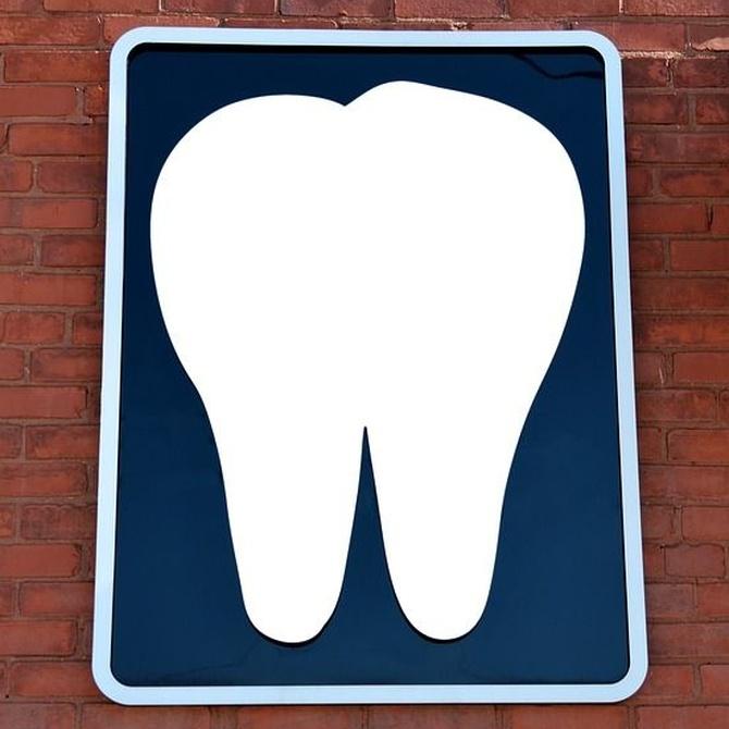 Cómo mantener sanos tus implantes dentales