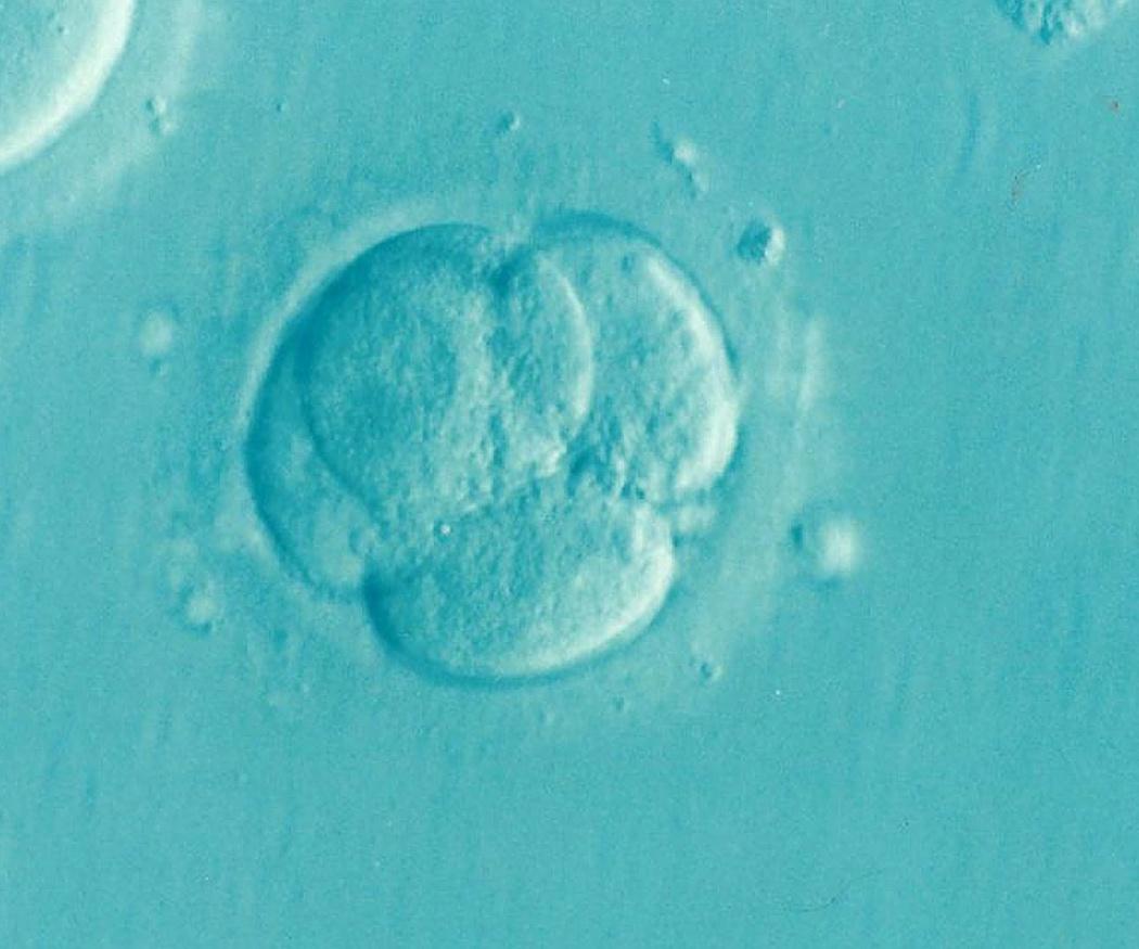 Infertilidad: ¿cómo remediarla?