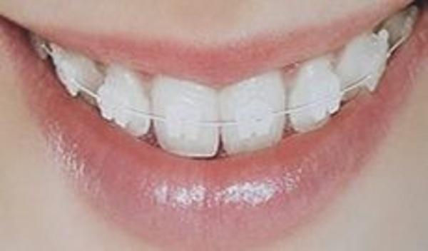 Ortodoncia: Tratamientos de Dens Clínica Dental