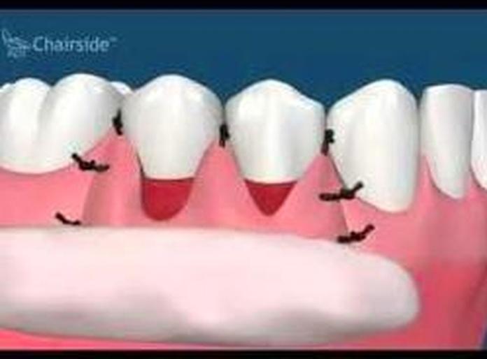 Cirugía periodontal a colgajo: Tratamientos de Clínica Dental Neardental