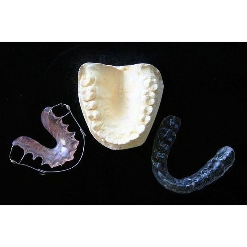 Prótesis dentales: Productos y servicios de Clínica Dental Carlos Michelon