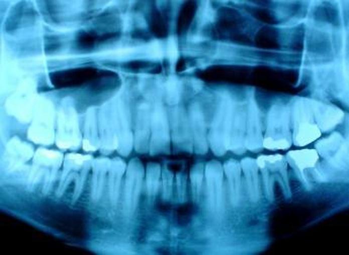 RAYOS X DIGITAL: SERVICIOS de Clínica Dental Basauri