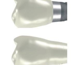 Especialista en Implantes dentales Malaga