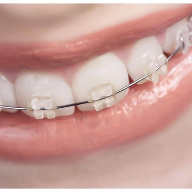 ¿Qué tipo de tratamiento de ortodoncia necesitas?