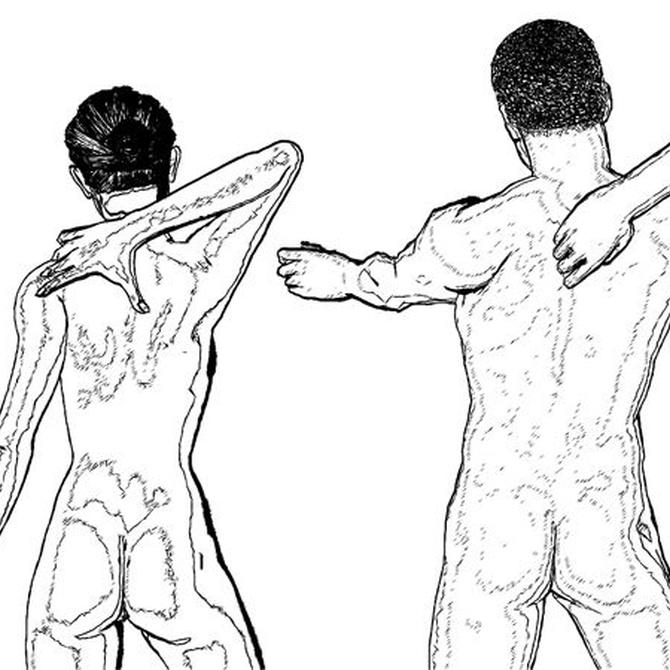 Factores de riesgo para los dolores de espalda