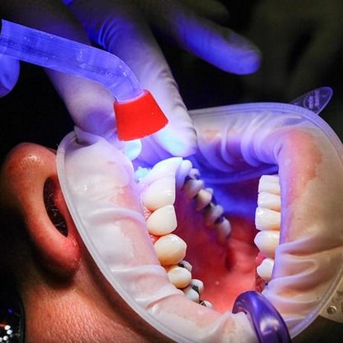 Enfermedades orales más comunes