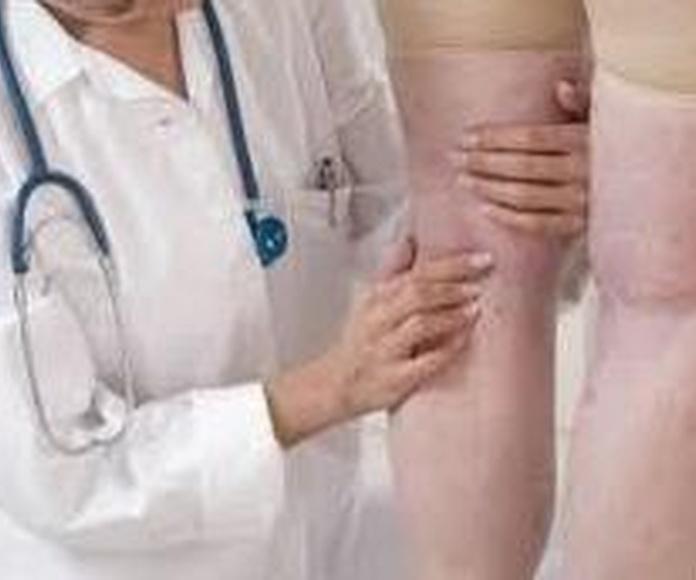Piernas con problemas vasculares