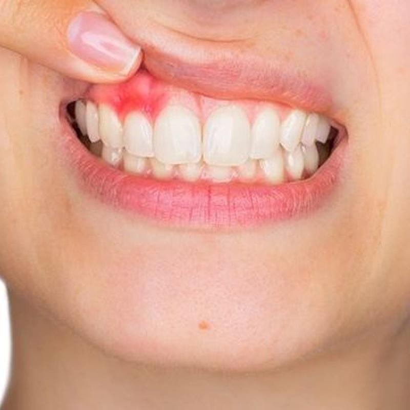 Periodoncia: Tratamientos de Clínica Dental Tàrrega - Guissona