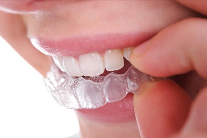 Ortodoncia invisible (Invisaling): Servicios  de Clínica Dental Sanclemente