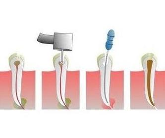 Odontopediatría: Servicios de Future Centros Dentales Avanzados