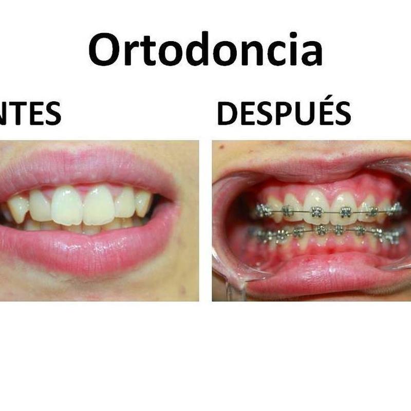 Ortodoncia: Nuestras especialidades de Clínica dental Dr. Vásquez