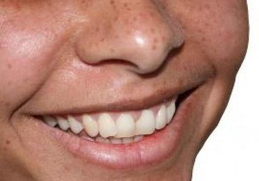 Estética dental