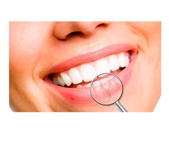 Odontopediatría: Servicios de Dental Implantes