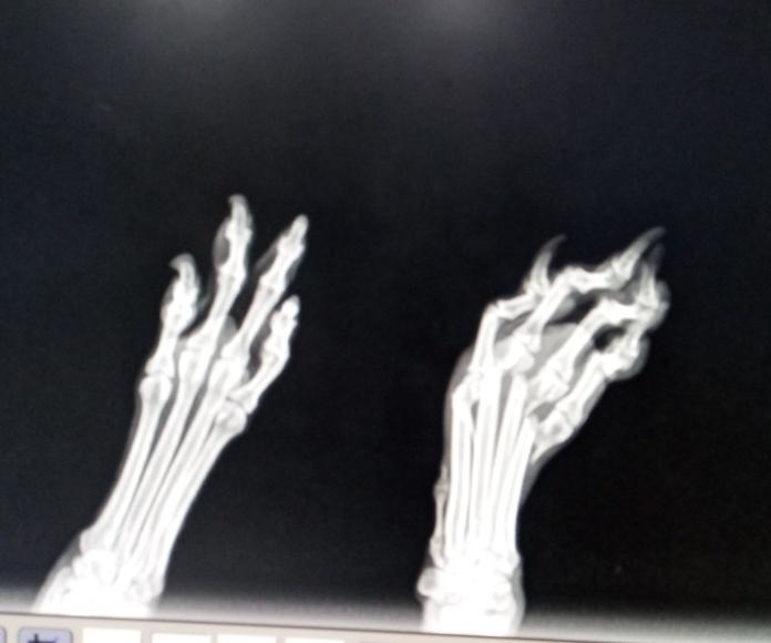 Rotura de los cuatro dedos de la mano