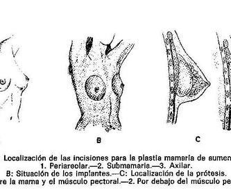 Cirugia de reducción de pecho: Intervenciones de Dr. Vila Moriente, J.L. CIRUJANO PLASTICO