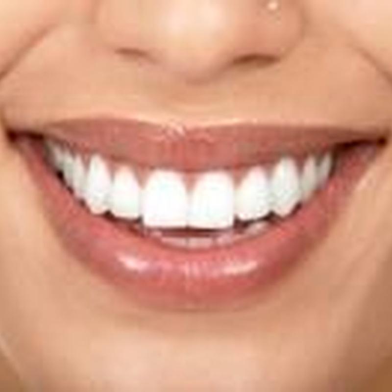 Remodelación labial: Tratamientos de Dra. Ana Vilasau