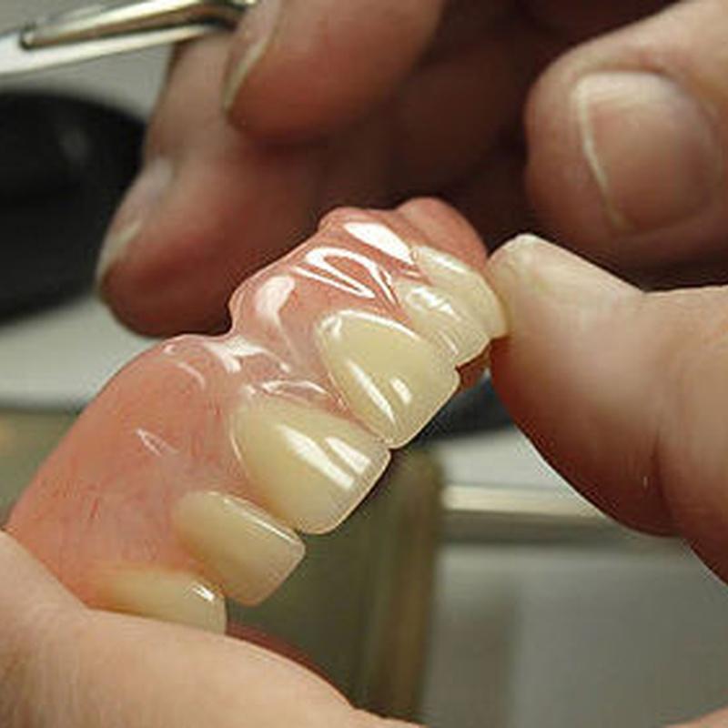 Prótesis : Tratamientos   de Abad Clínica Dental