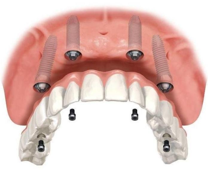 Implantes dentales baratos en Silla Y Beniparrell