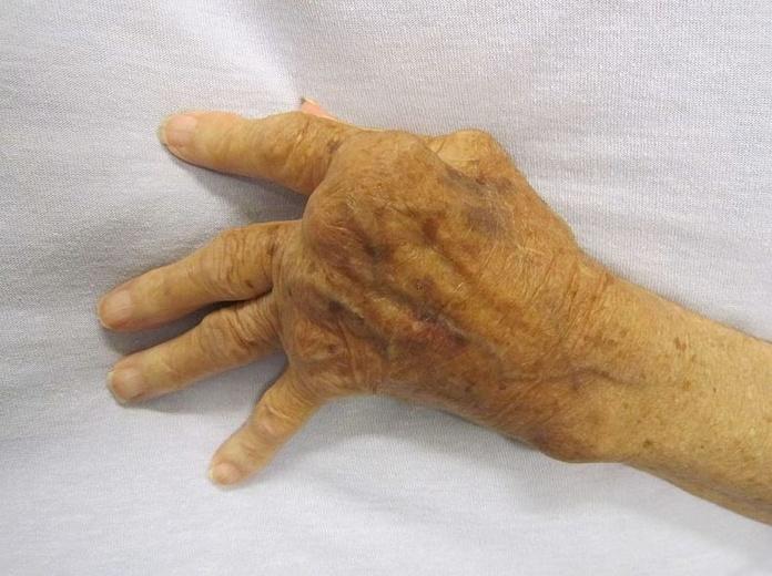 Enfermedades osteoarticulares: Tratamientos y Terapias de Ciudad Alta