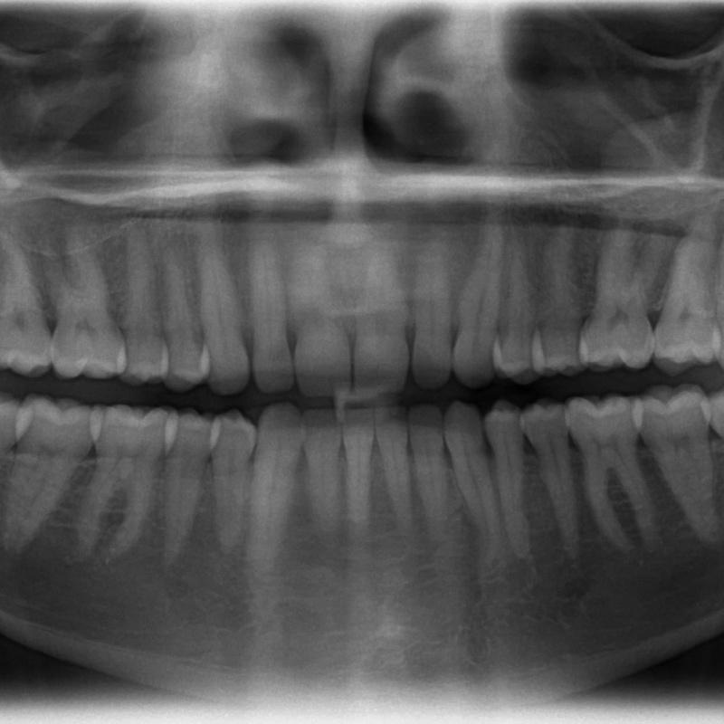 Ortopantomografía: Servicios of Clínica Dental Global Dental