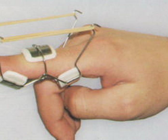 Ortesis dinámicas de dedo: Servicios de  Ortopedia de Ortopedia San Andrés