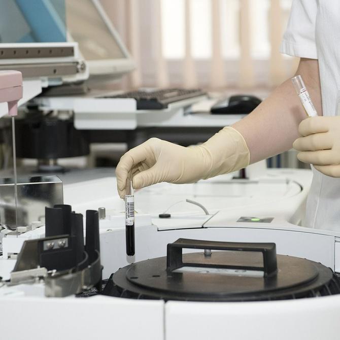 ¿Qué es una citología vaginal?
